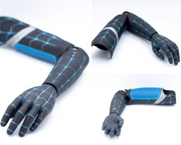 image-produit-prothese-bras-charly
